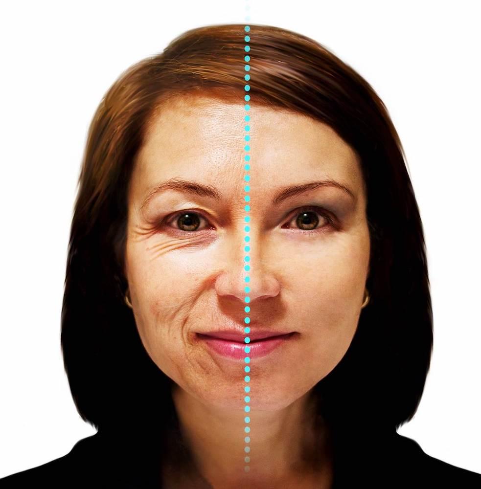 efectos-estres-rostro