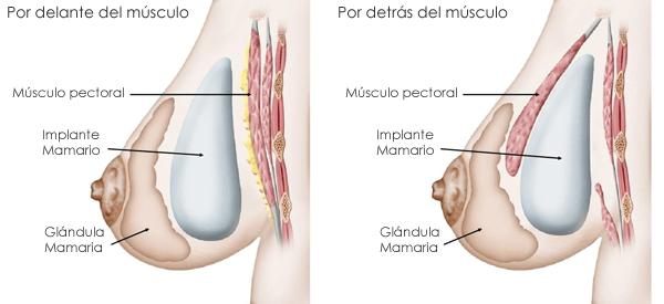 cirugia-mamas-implante
