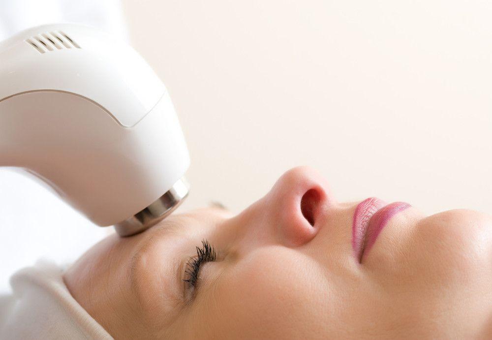 radiofrecuencia-flacidez facial