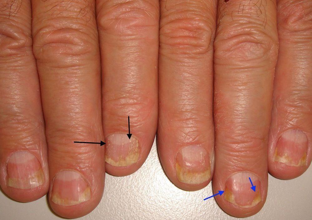 psoriasis uñas